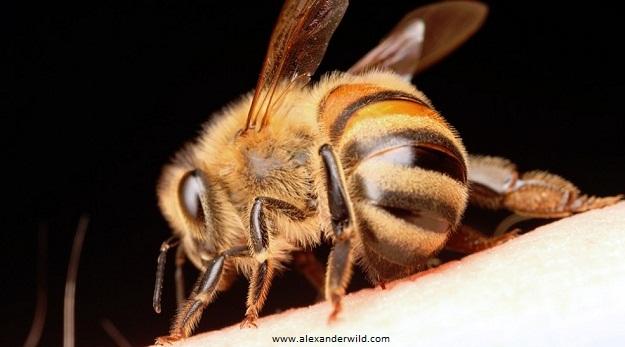 bee stings